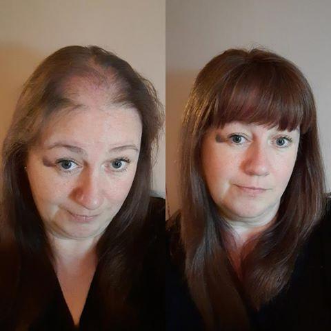 hide hair loss in women alopecia trich