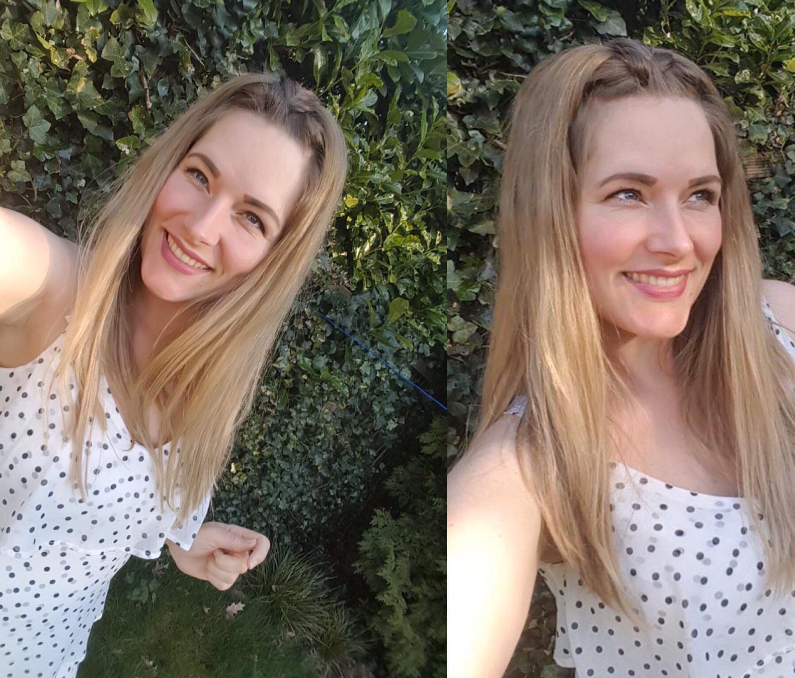 hair topper for hair loss alopecia in women