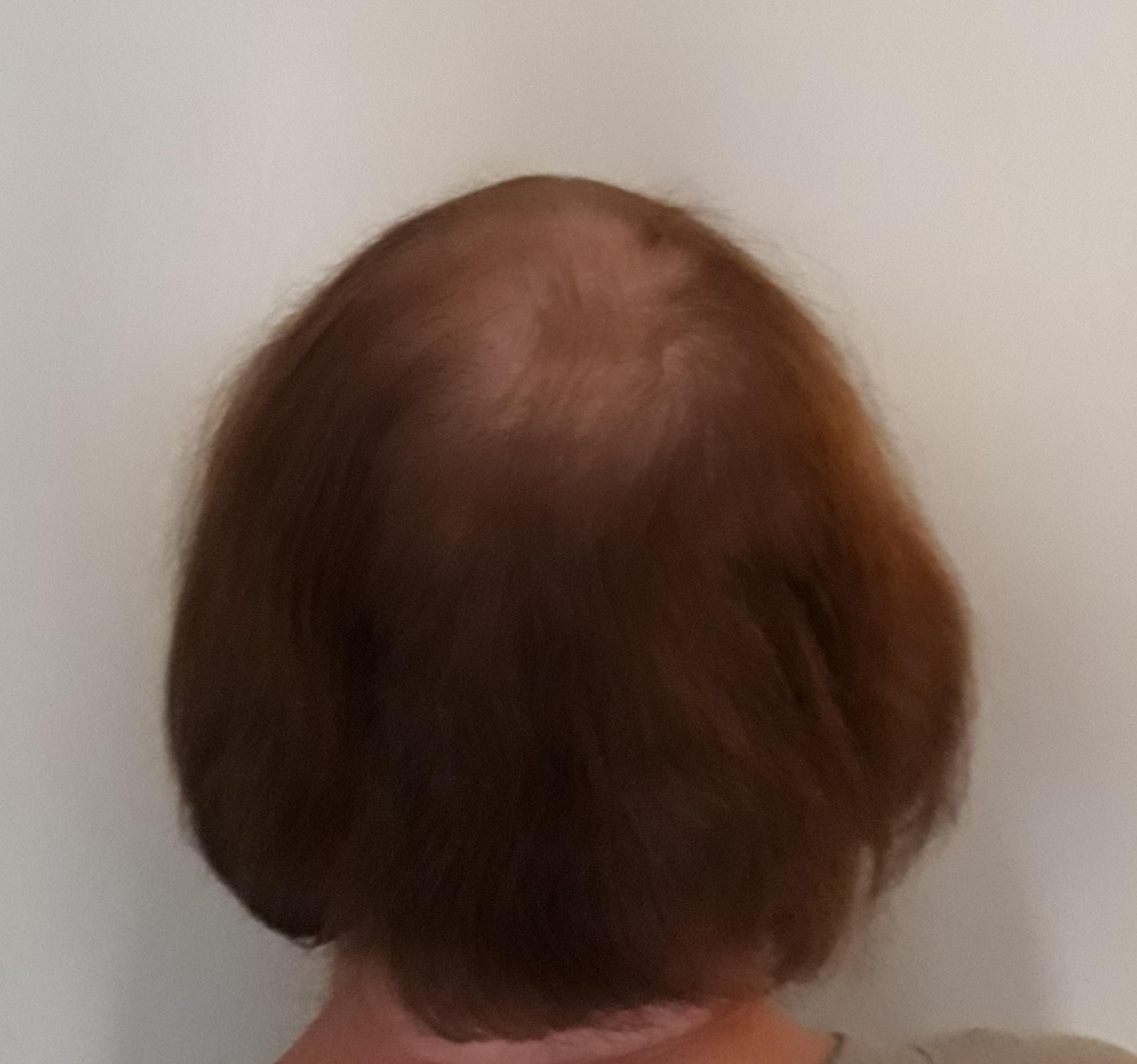 hair loss crown hair problems women
