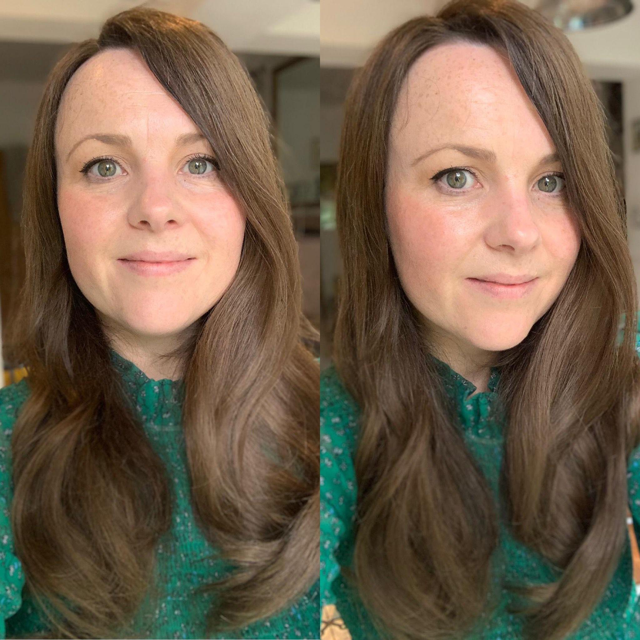hair topper hair loss chemo