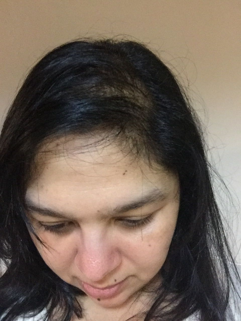 Bald thin thinning hair in women