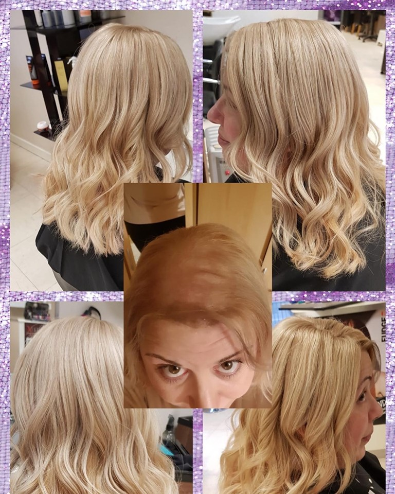 hair piece for ladies with hair loss