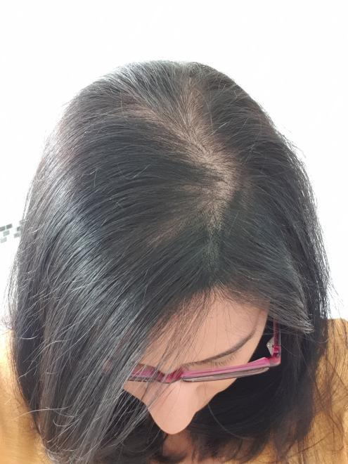 hair loss in Indian culture