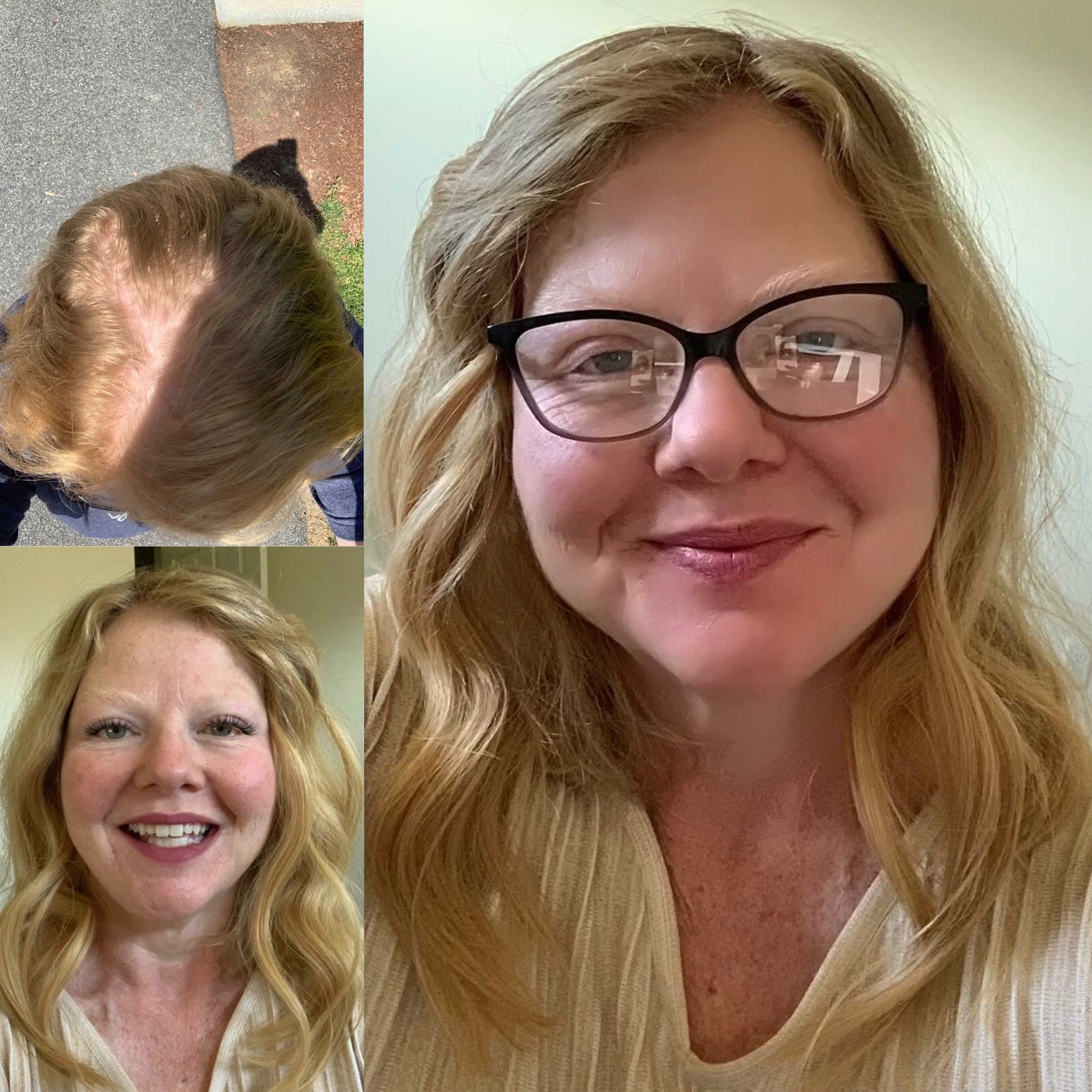 women wearing silk base natural hair topper hair loss alopecia