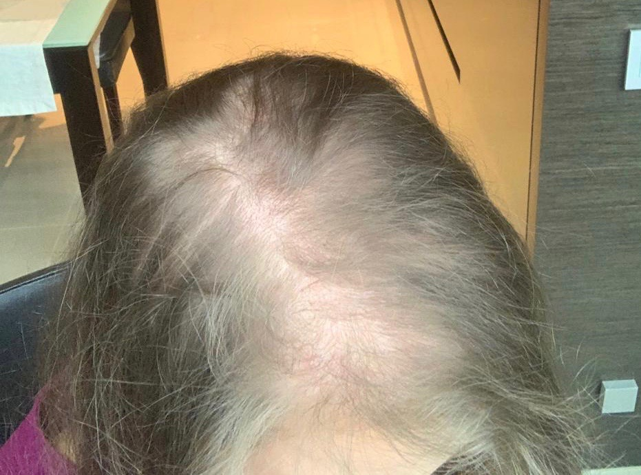 Hairloss in women thin thinning hair alopecia