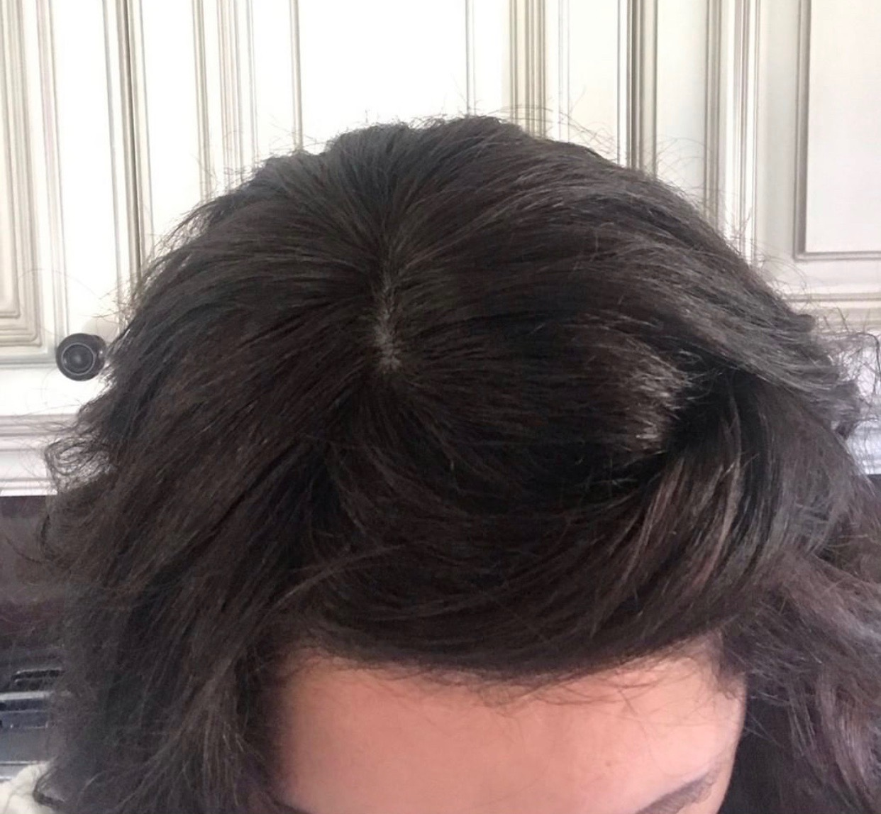 Hairloss in women alopecia wig wiglet Trich pcos hair thin hair thinning balding