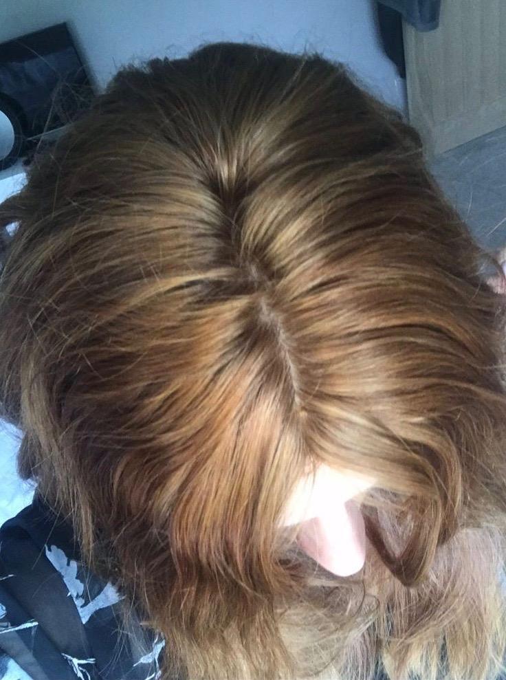 natural hair loss solution balding women silk closure