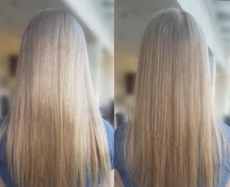 alopecia hair loss thin thinning hair women