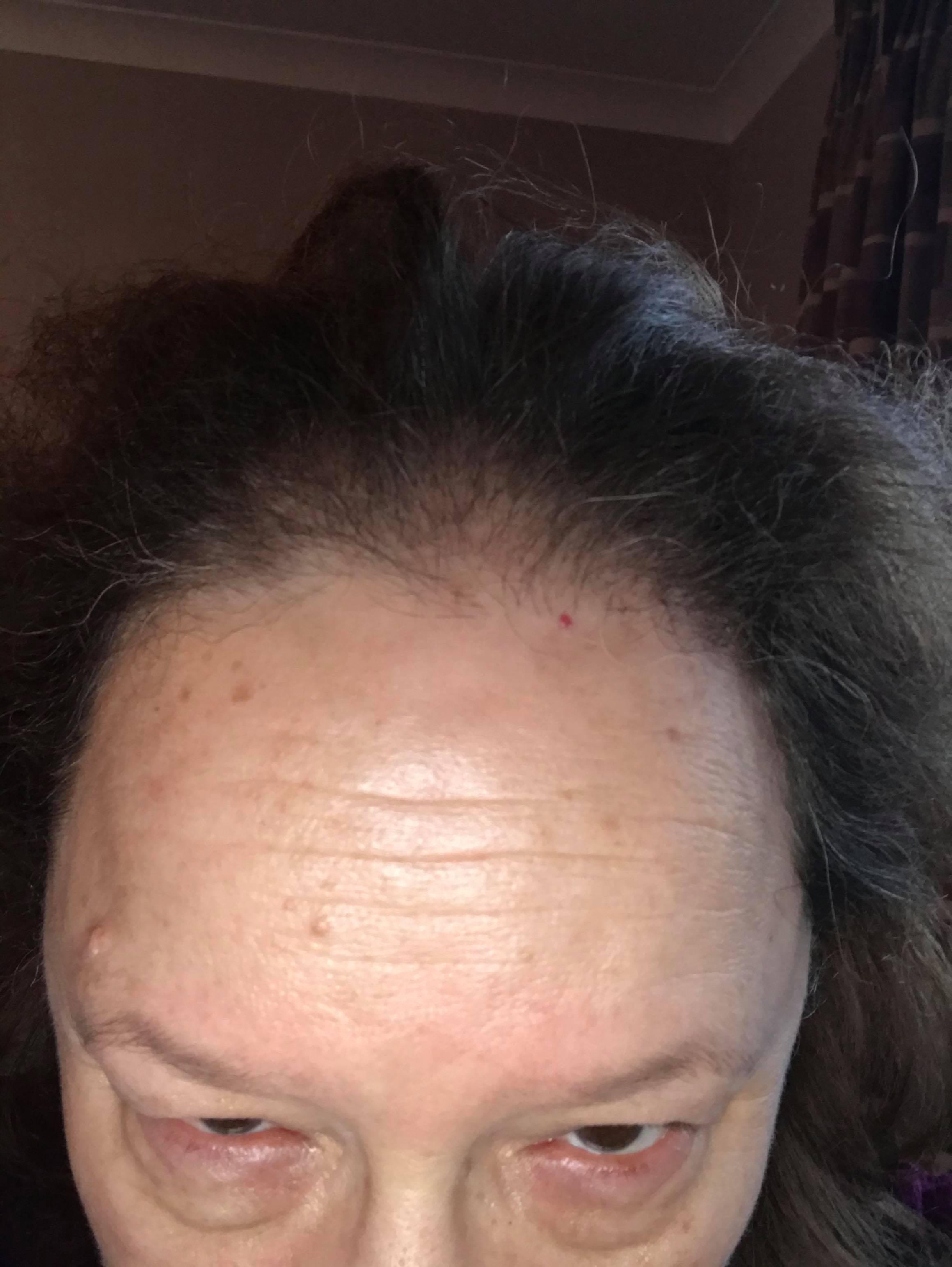 hair loss frontal in women
