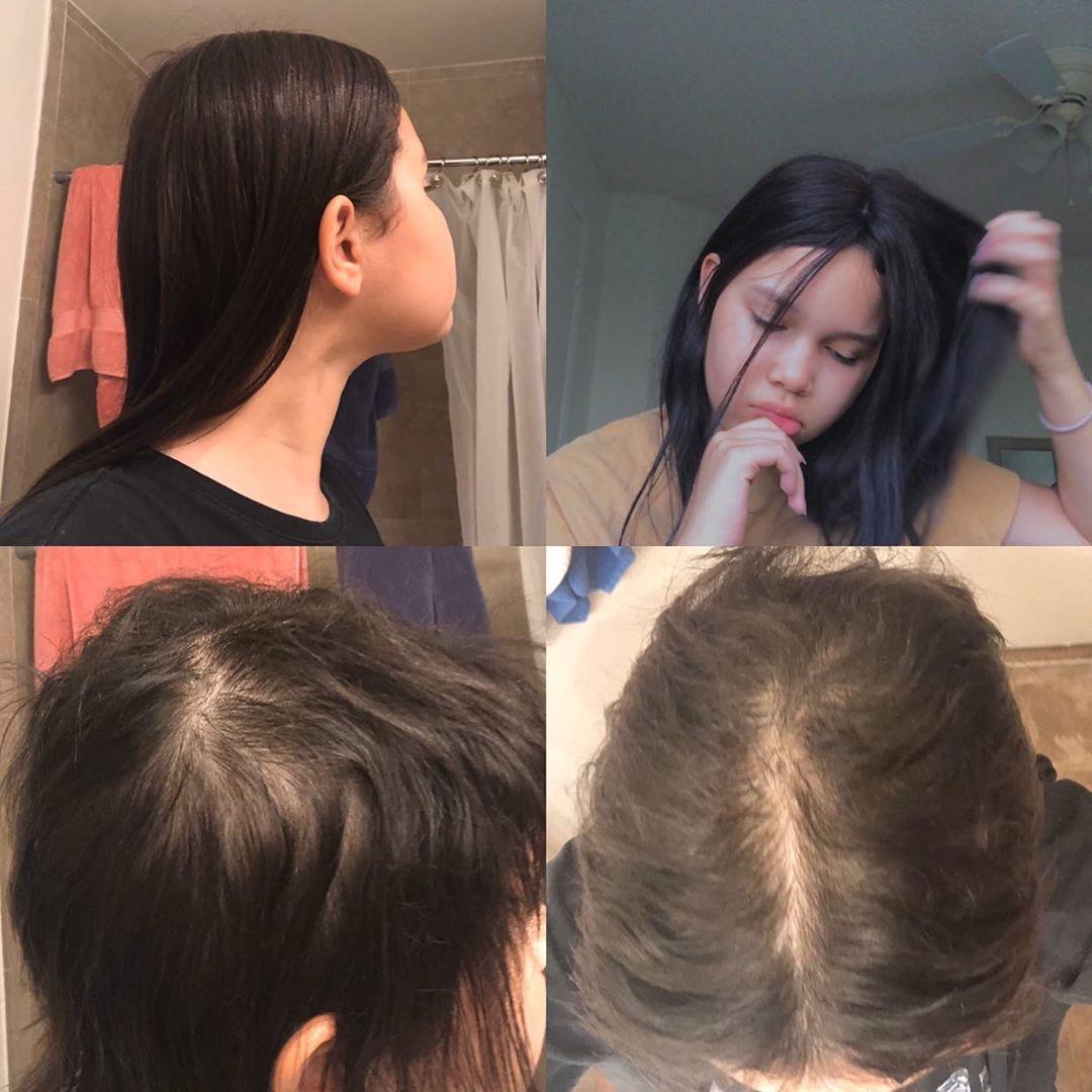 hair loss in women trich trichotillomania