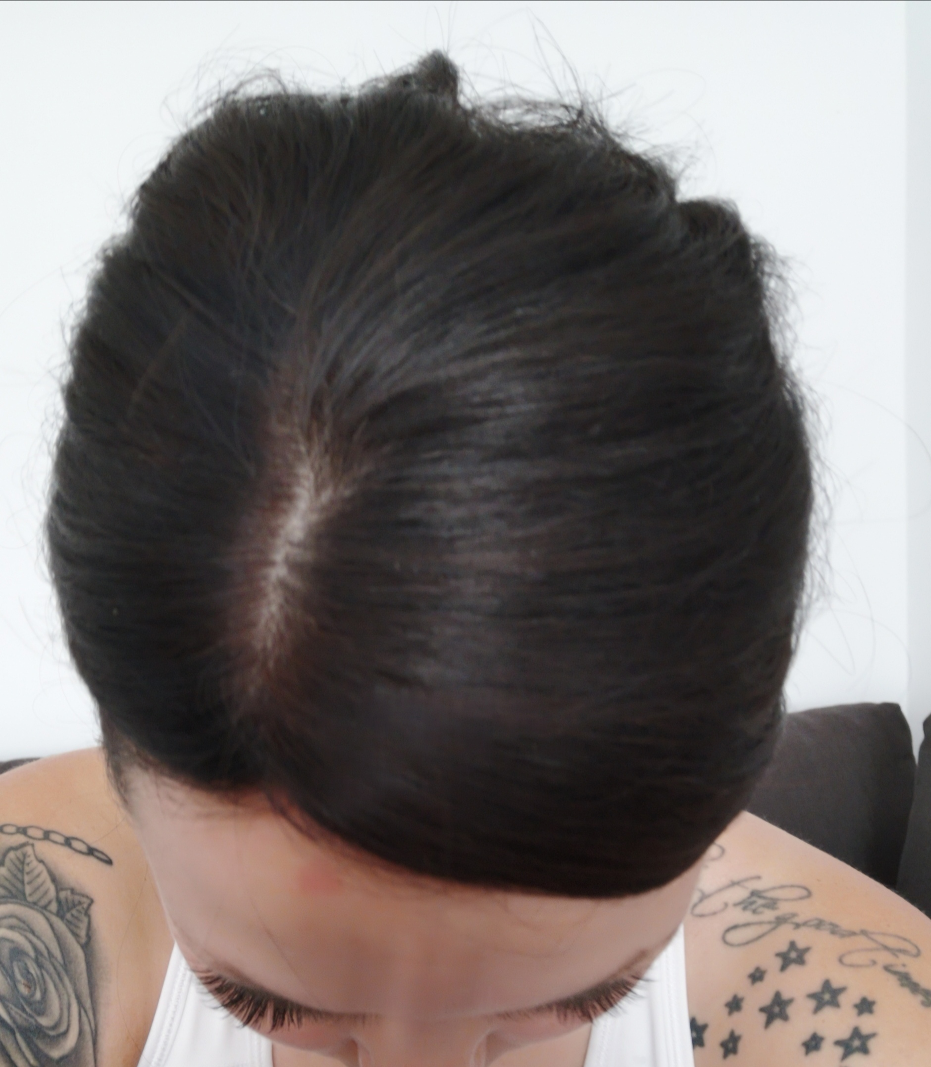 hairpiece for hairless thinning