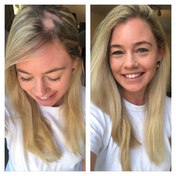 alopecia hair loss women