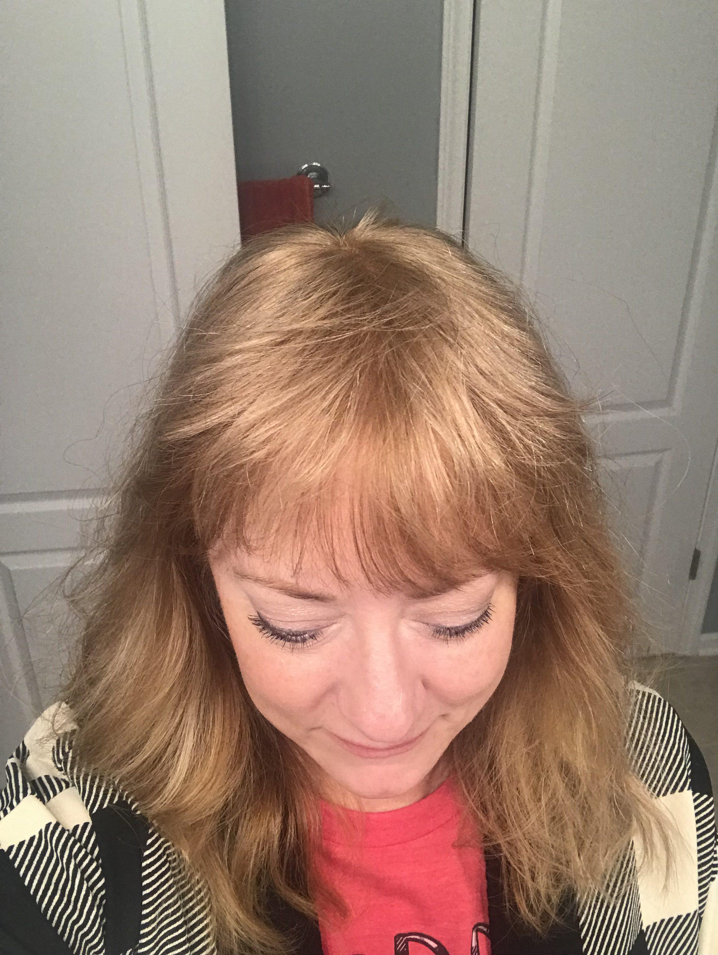 Hair topper hair loss women thin thinning hairpiece wig alopecia