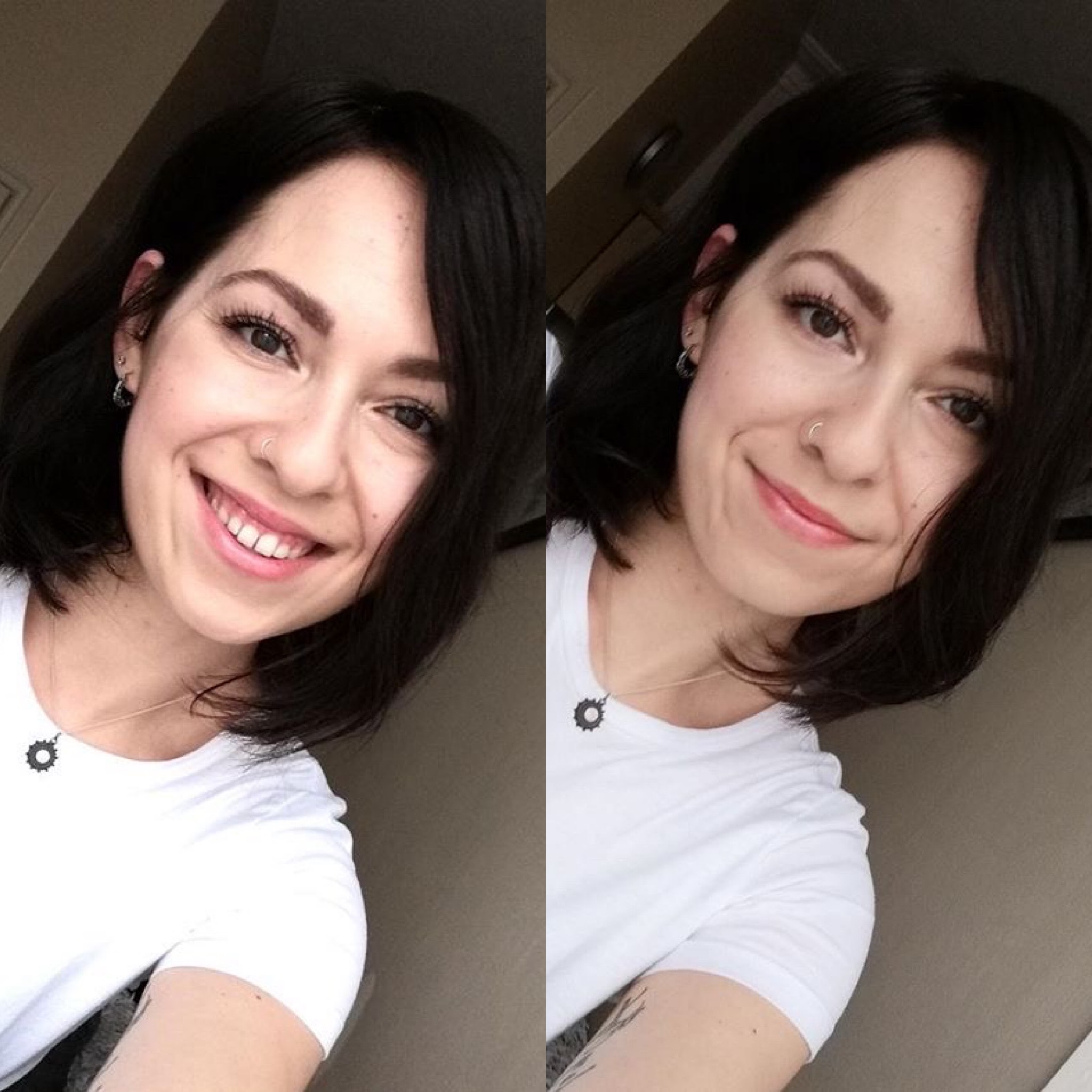 hair loss in women alopecia