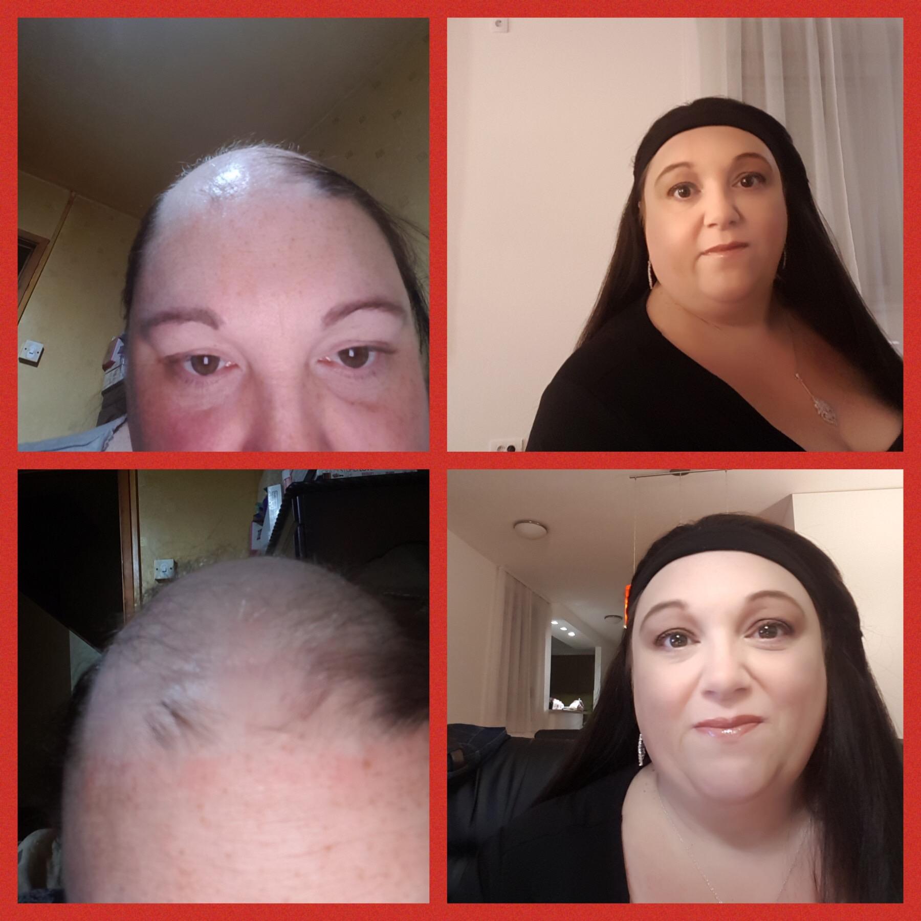 hair loss thin thinning hair women hairpiece alopecia