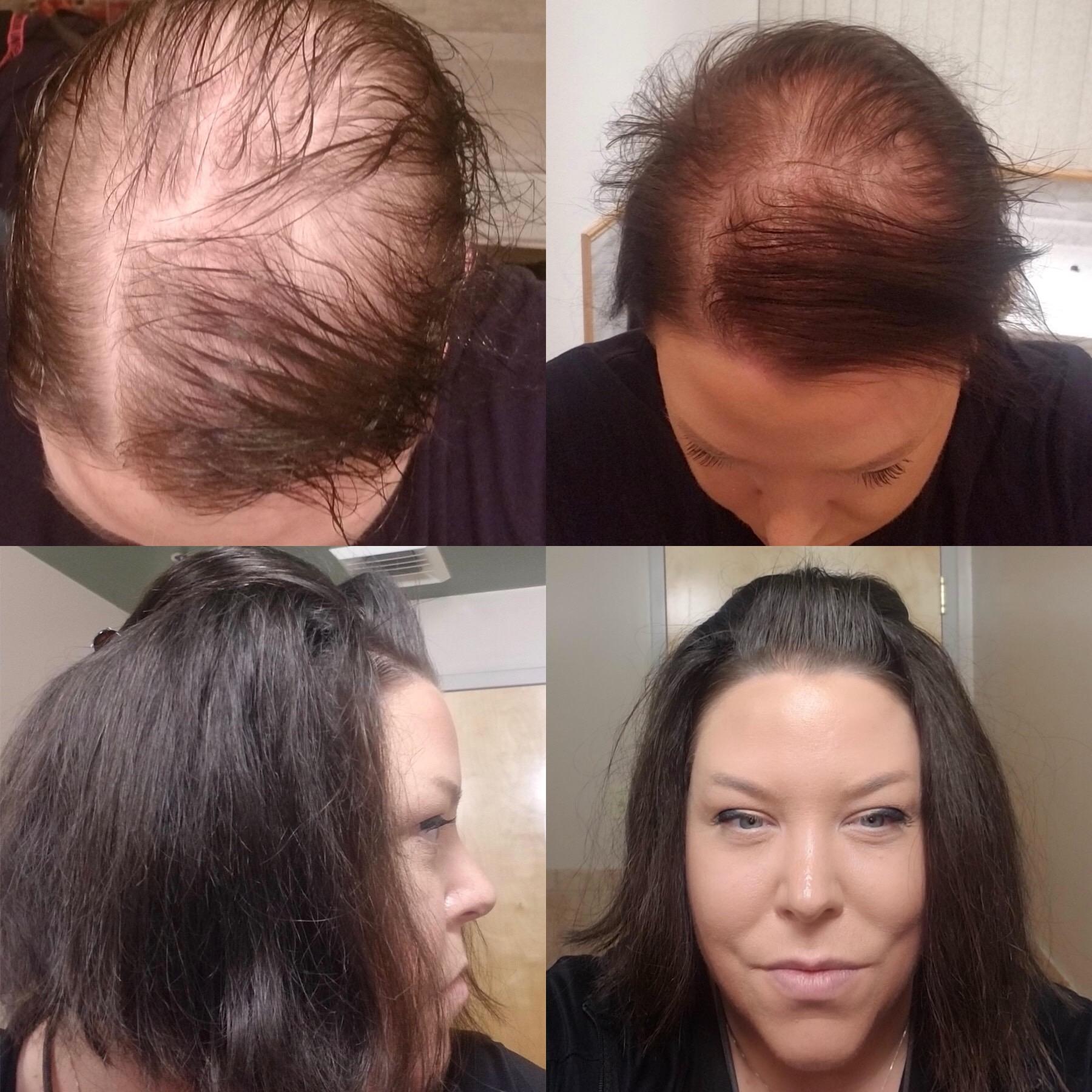 hair loss thin thinning hair women hairpiece