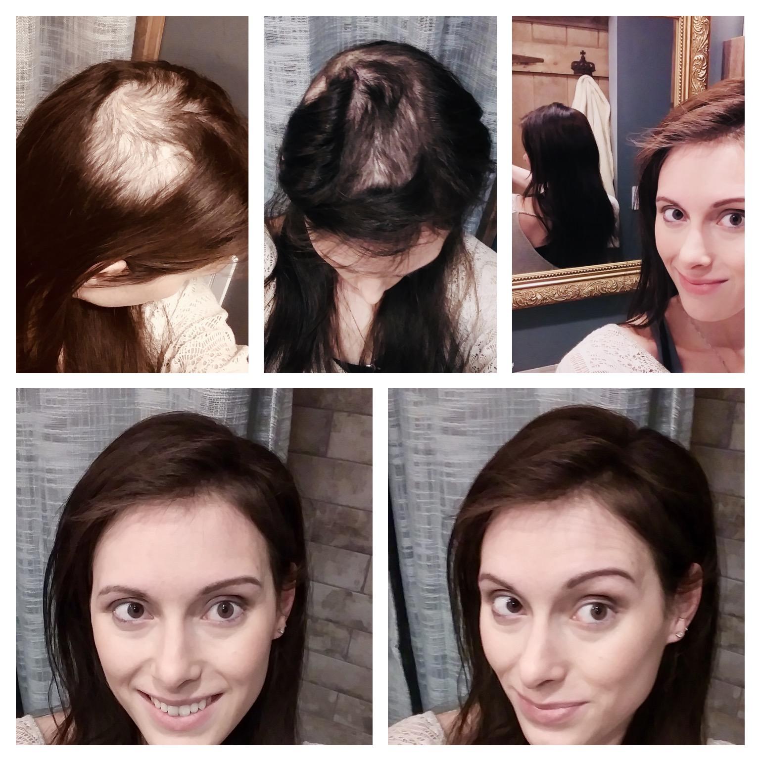 Thin hair solution lace closure