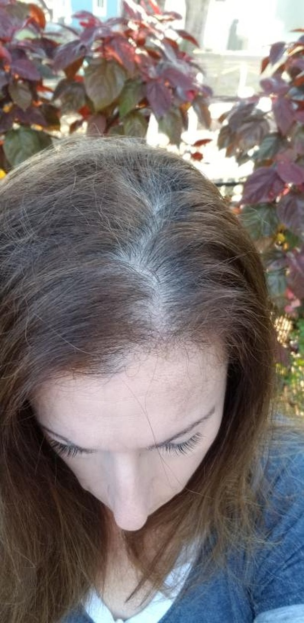 hair loss hairpiece women thin thinning alopecia