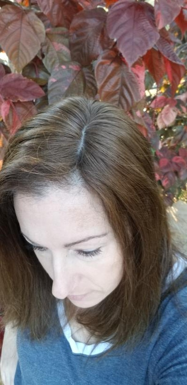 hair loss hairpiece women thin thinning alopecia chemo Trich