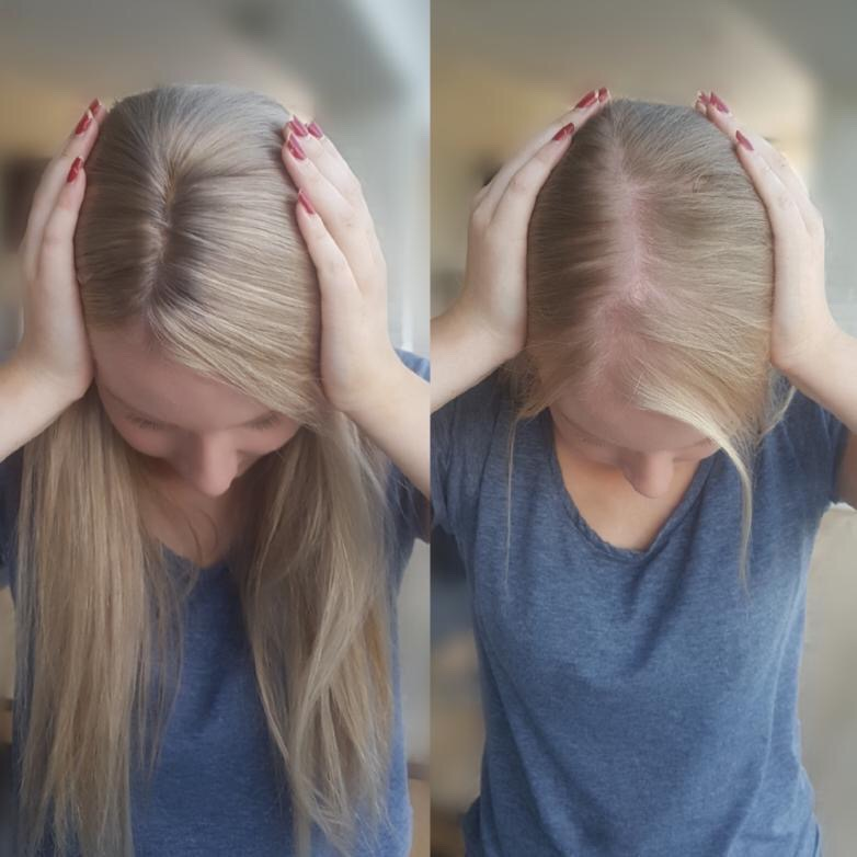 hair lossin women