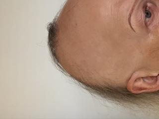 bald balding women hair loss