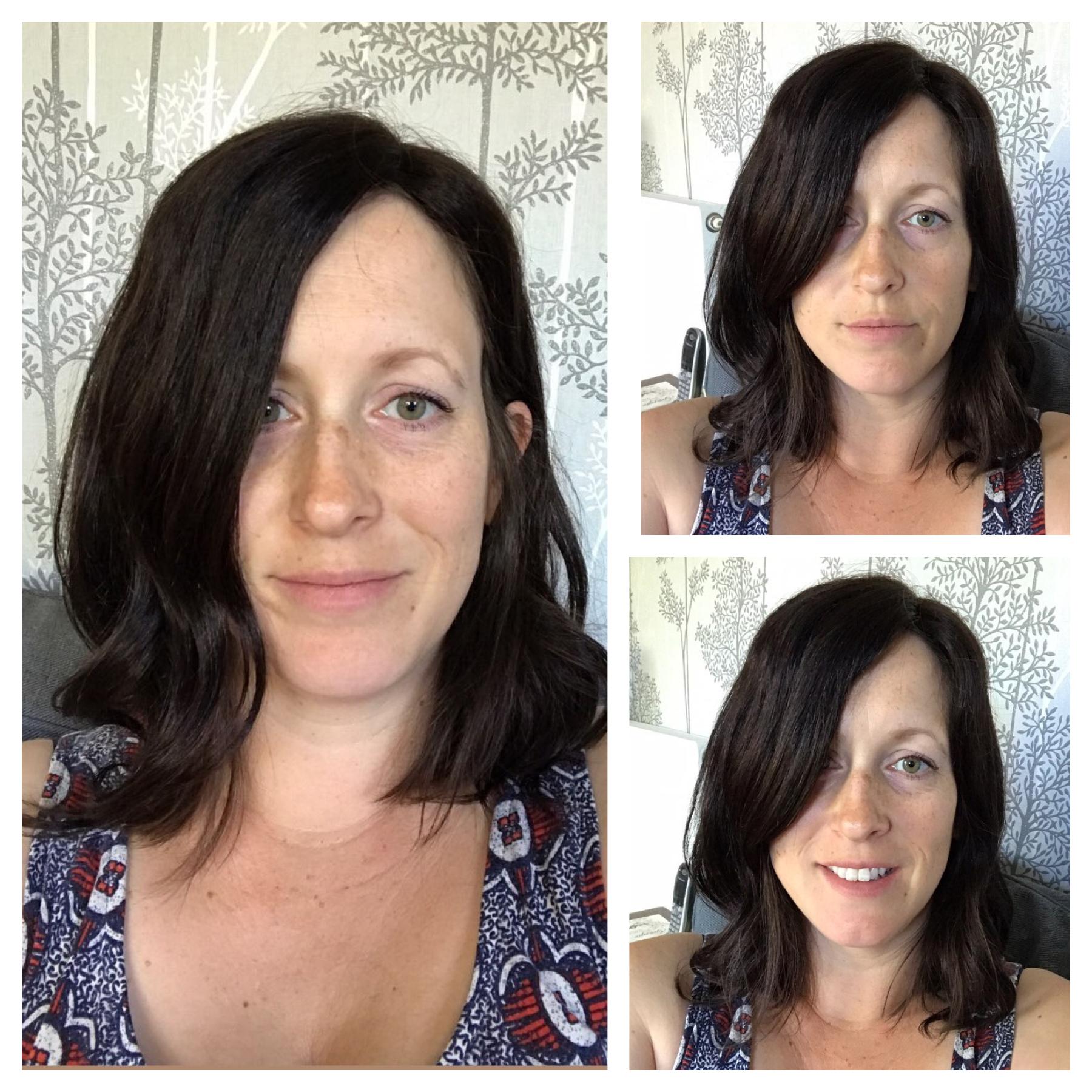 silk base topper for alopecia chemo hair growth