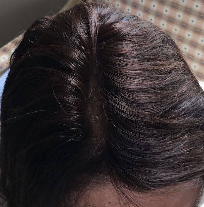 seamless hair fillers hair loss top piece