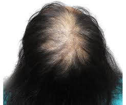 thin hair bald crown hair loss problems women