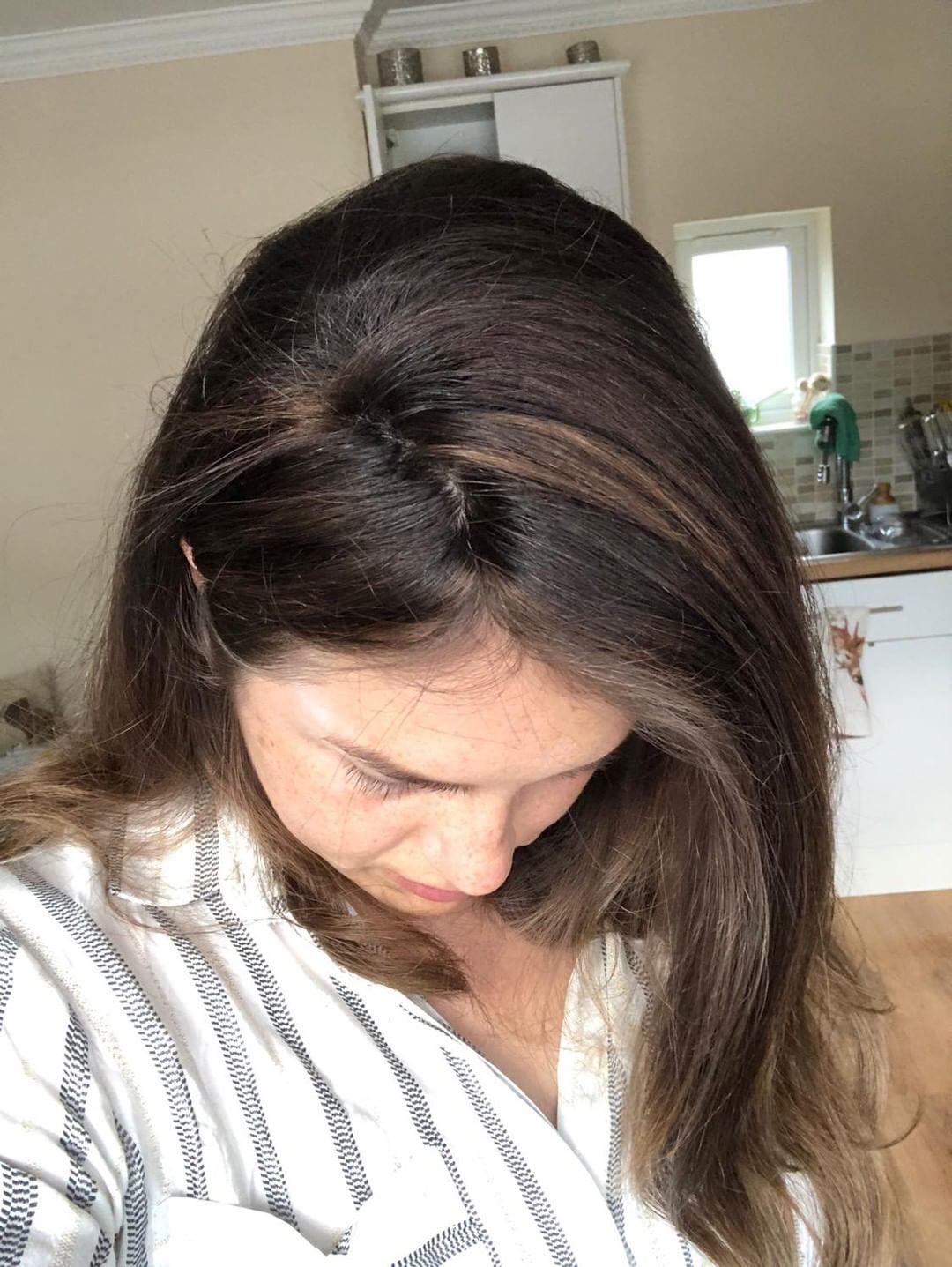 hair loss women alopecia solution remedy thin hair