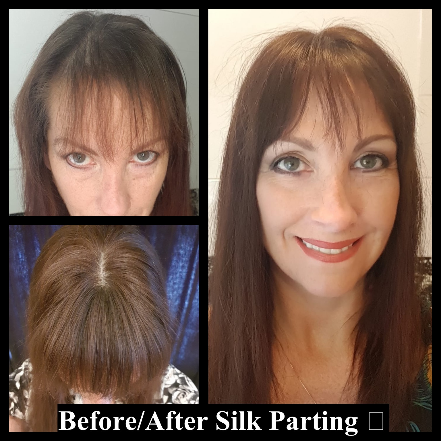silk small hair topper early stages hair loss in women