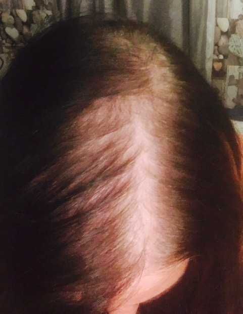 Thin Hair Loss women solution trichotillomania alopecia