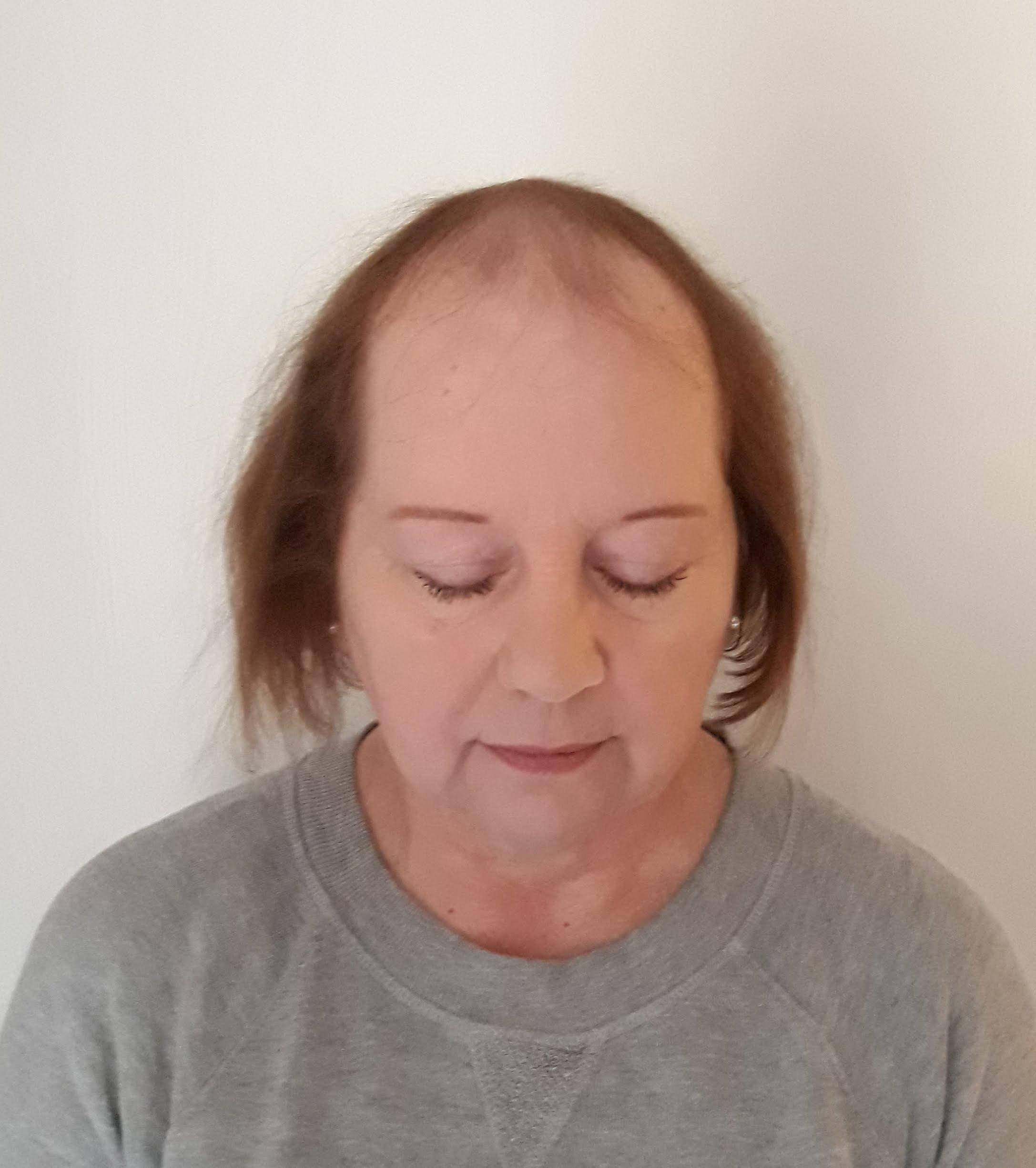 Bald hair loss women