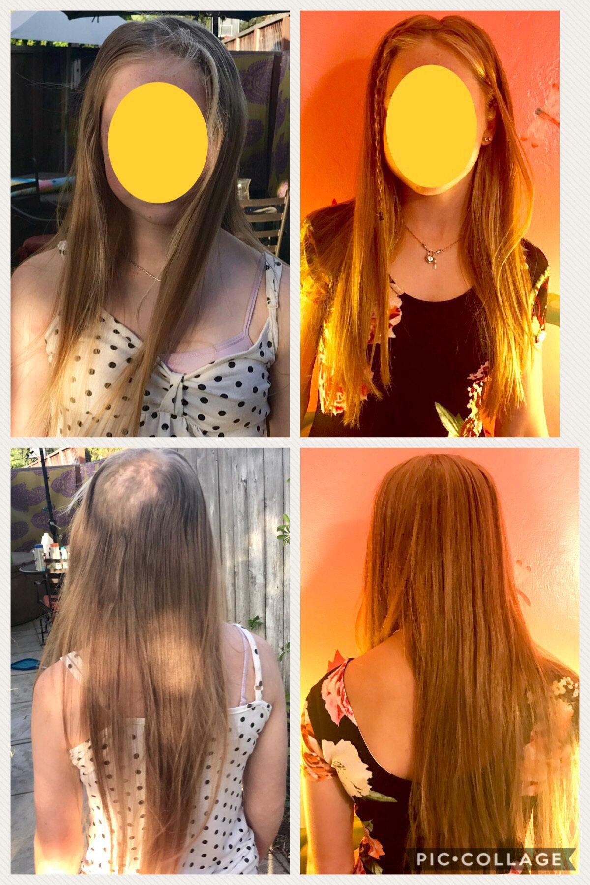 Silk Hair Topper Piece trichotillomania alopecia pcos hair loss chemo hair