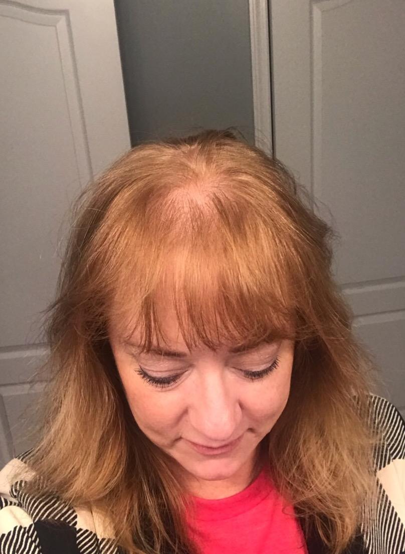 Hair topper hair loss women thin thinning hairpiece