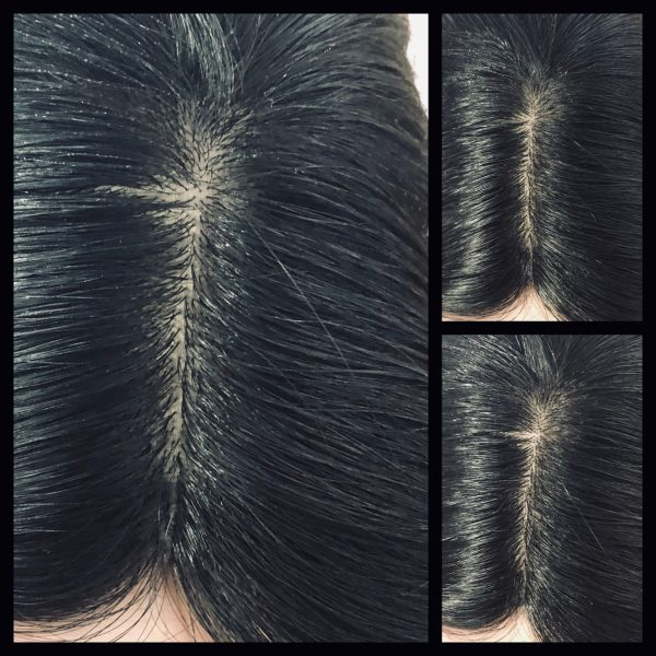 Silk base topper hair loss thinning hairpiece women