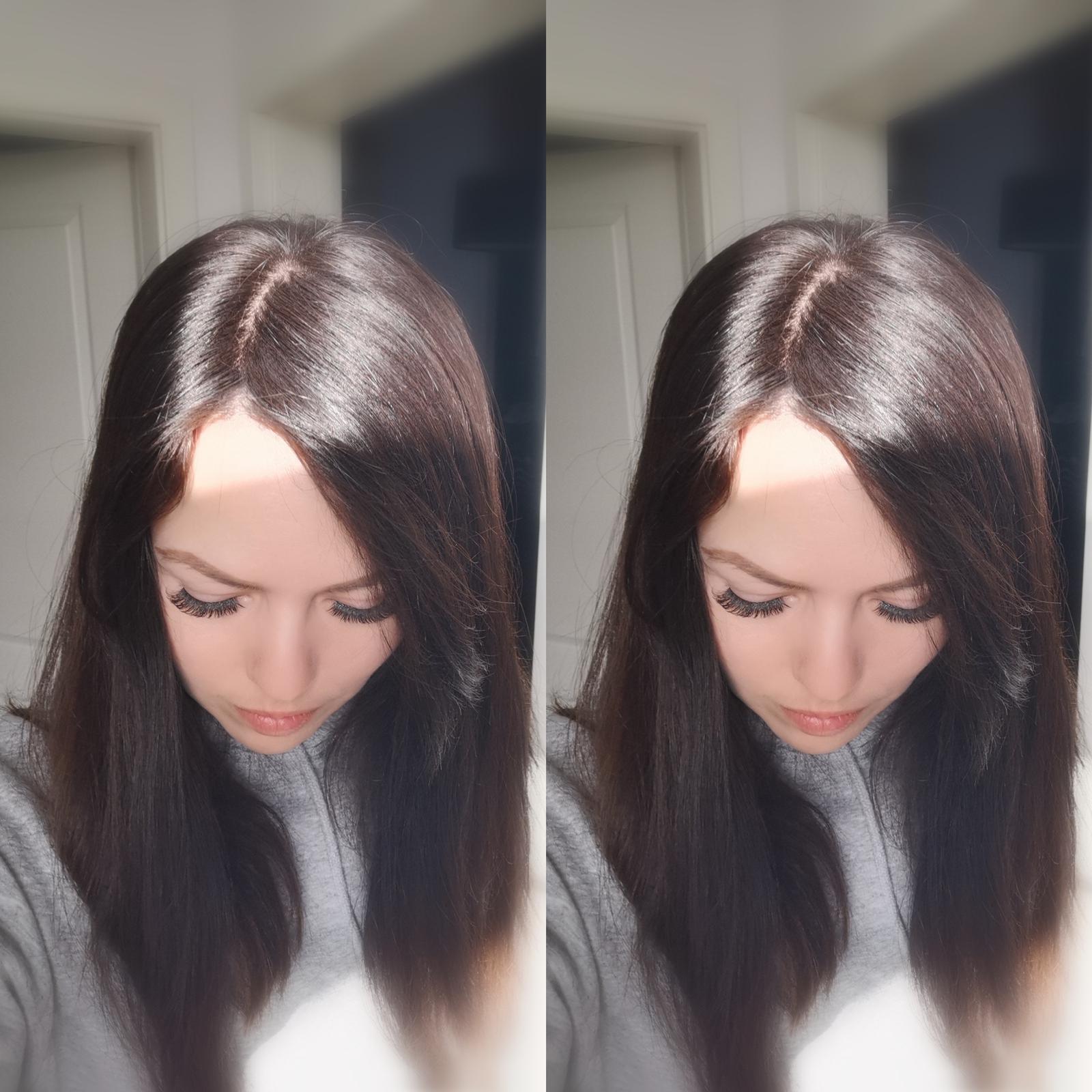 low density topper hair loss natural