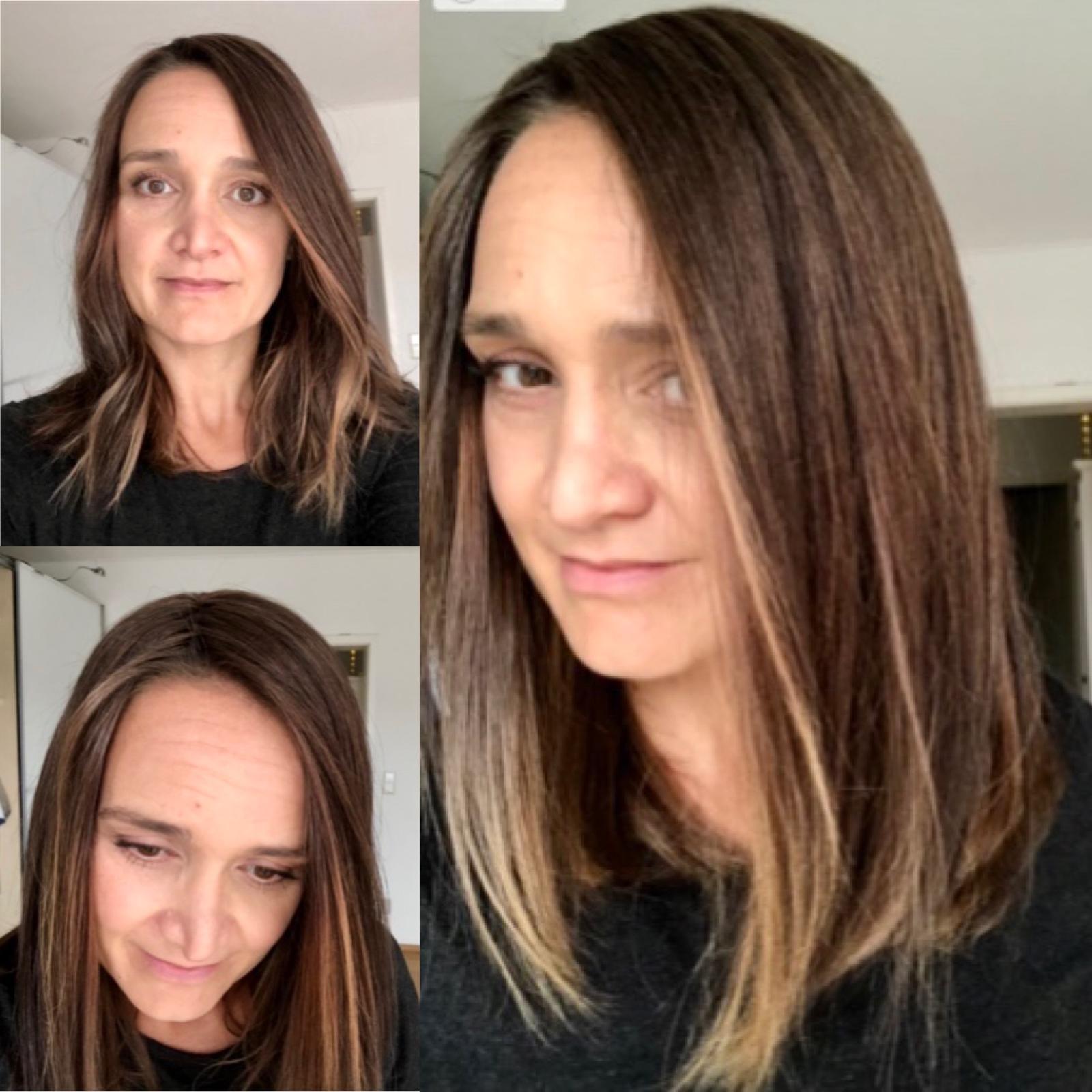 chemo hair regrowth natural hair loss solution